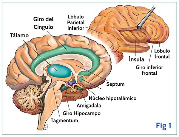disfunción eréctil de accidente cerebrovascular del sistema límbico