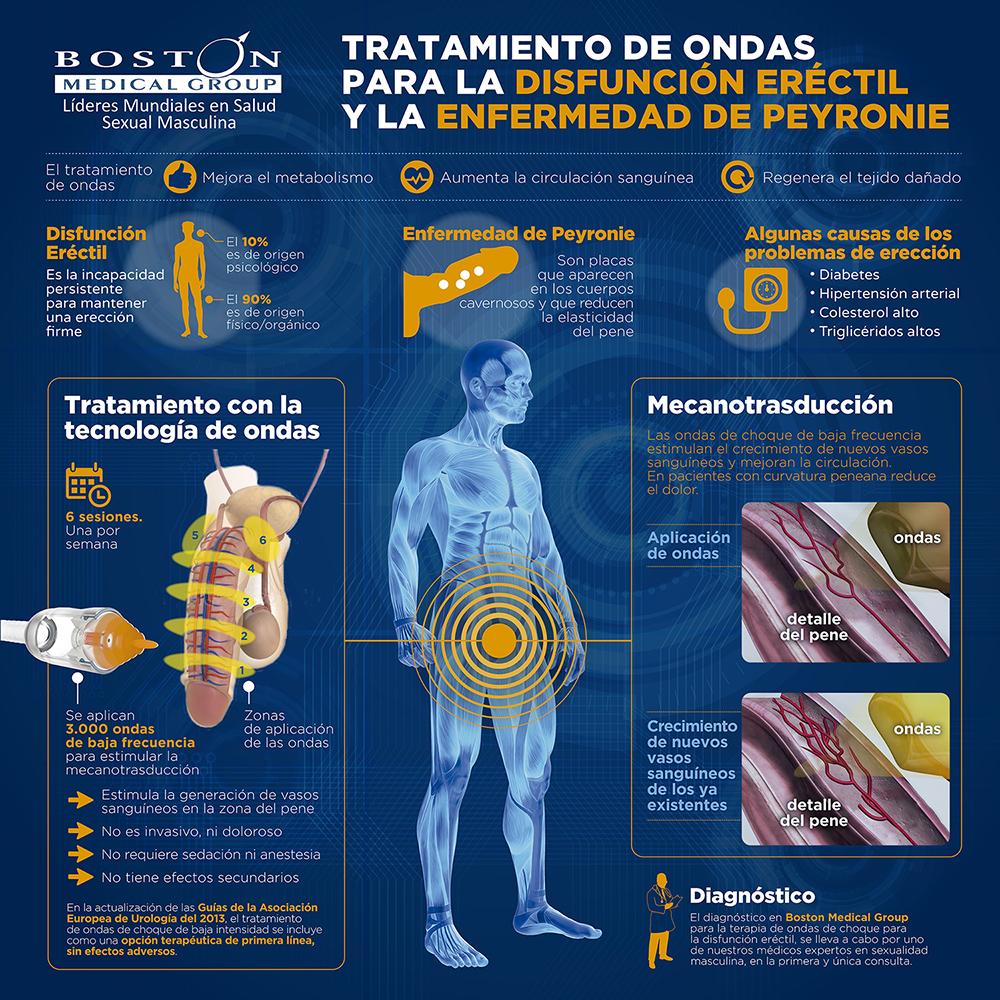Tratamiento de ondas para la disfunción eréctil y la curvatura peneana